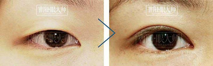 韩式微创重睑/内眦赘皮矫正/翘睫术