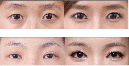 韩式无痕开眼角 - 韩美印象医疗美容外科
